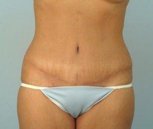 cicatrizabdominoplastia
